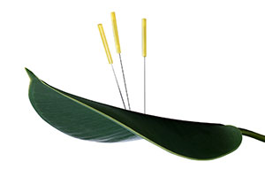 acupuncturegurulogo